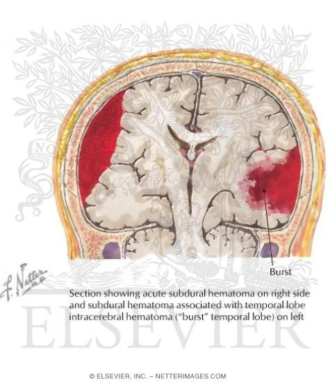 48 Best Subdural Hematoma Images On Pinterest