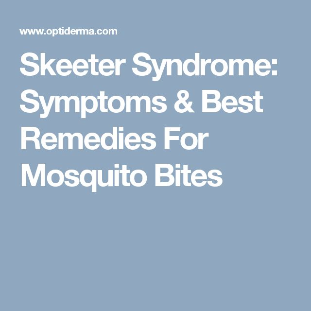 Skeeter Syndrome: Symptoms & Best Remedies For Mosquito Bites