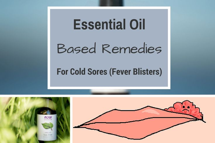 Cold sores (also known as fever blisters) are a painful and unsightly infectious blister that's usually found on the lips or face.They are caused by the virus herpes simplex I (HSV), which can lie dormant in the body, only to flare up when your body is stressed out.  Sometime after being