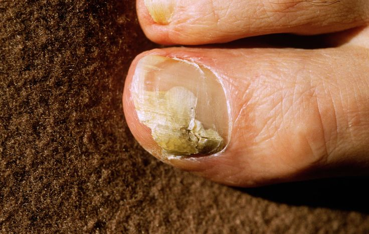 how to get rid of fungus on your toenails