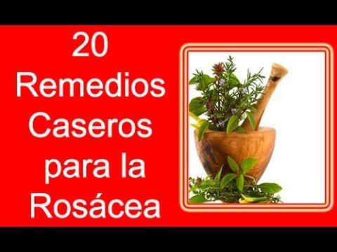 20 Remedios Caseros Para La Rosácea En La Cara | Tratamientos para la Rosácea