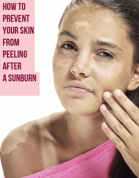 How to Prevent Your Skin From Peeling After a Sunburn: