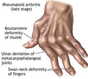 EFFECTIVE RHEUMATOID ARTHRITIS TREATMENTS