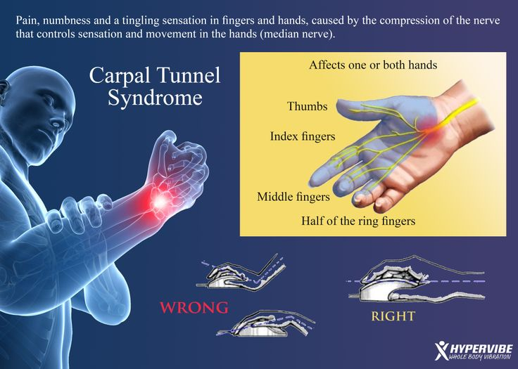 the medical description of the carpal tunnel syndrome Description carpal tunnel syndrome (cts) refers to pain, thumb muscle weakness and sensory changes in the hand where tendons and the nerve pass through the wrist to the hand, they thread through .