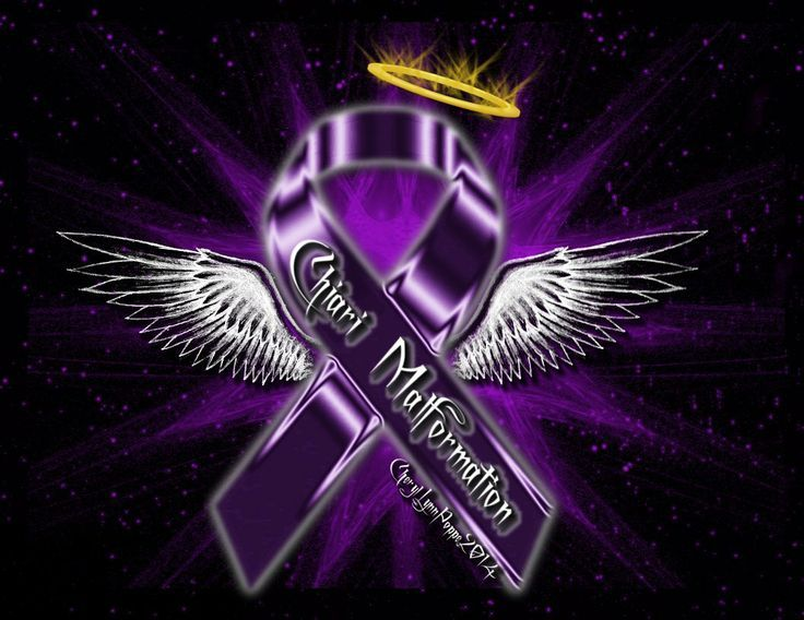 366 best images about Chronically Fabulous - Chiari ...