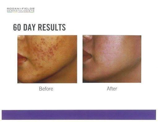 how to make skin blemish free