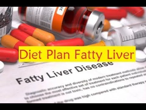 Diet Plan Fatty Liver - Foods to Avoid a Fatty Liver