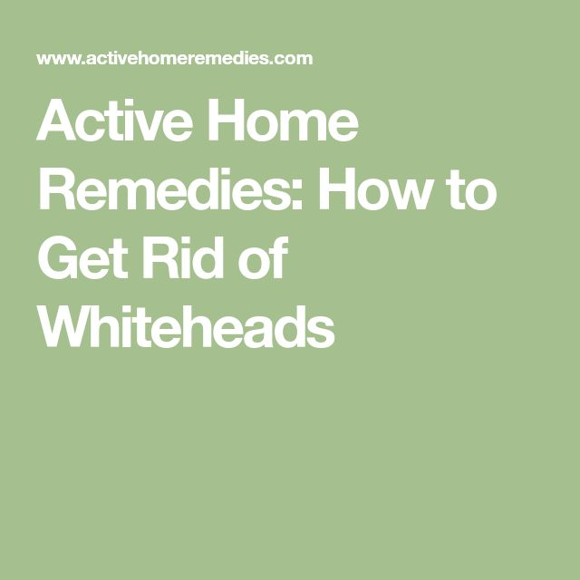 Active Home Remedies: How to Get Rid of Whiteheads