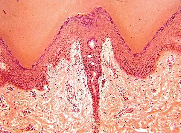 Colorazione con ematossilina-eosina - Medicinapertutti.it