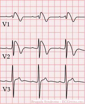 Brugada Syndrome (σύνδρομο μακρού QT)