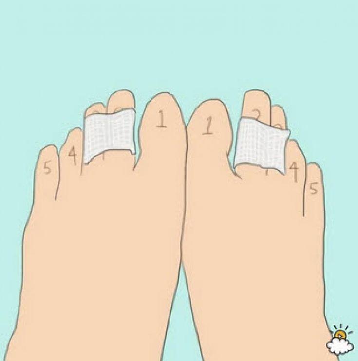 Afin d'éviter la pression sur l'avant pied, il est judicieux de coller le deuxième au troisième orteil ou le troisième au quatrième