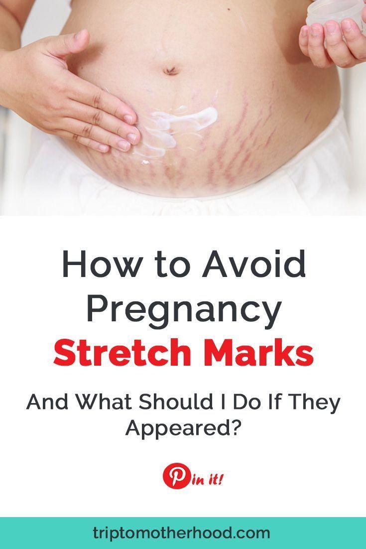 Pin On Pregnancy Stretch Mark Remedies