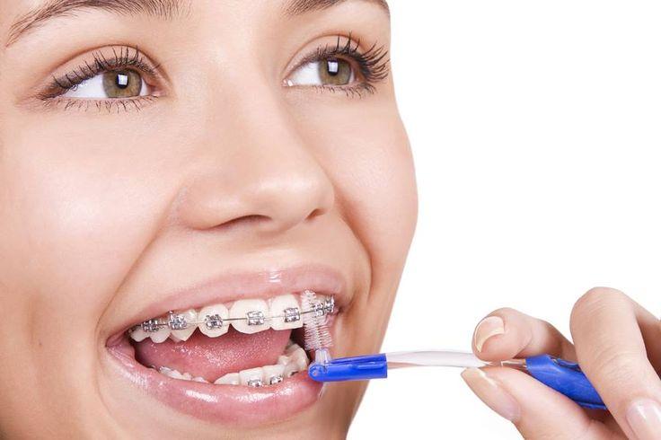 O cauza a cresterii anormale a gingiei la purtatorii de aparat dentar (de regula fix) este lipsa unei igiene corespunzatoare.  Alimentele retentionate in jurul aparatului pot, nu doar sa cauzeze carii daca raman perioade lungi pe smalt, ci si sa provoace inflamarea acesteia (prin fermentatie si cresterea numarului de bacterii din apropierea gingiilor), ducand la gingivita. — at The Gentle Dentist.