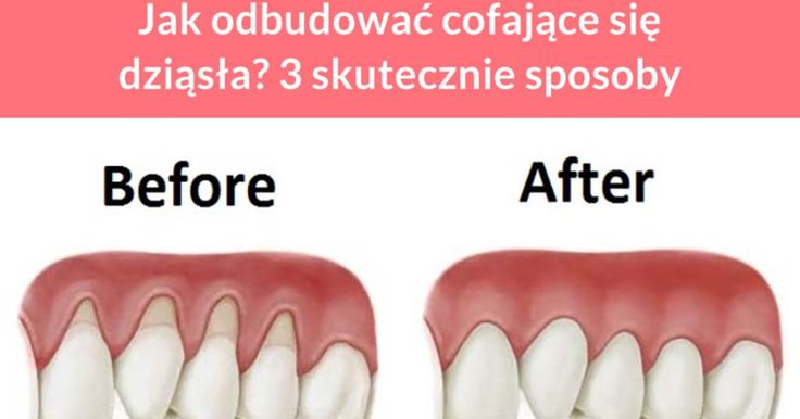 Do cofania się dziąseł dochodzi poprzez utratę tkanki dziąseł. Skutkiem tego są odsłonięte korzenie zębów. W miejscy tym bardzo łatwo namnażają się bakterie, co powoduje dodatkowe problemy z zębami. Jak ...