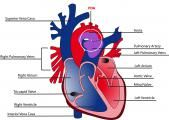 Ischemic heart disease is most commonly caused by coronary artery disease.