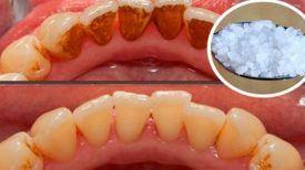 Ue-recette-pour-blanchir-les-dents-les-plus-jaunes-et-éliminer-le-tartre
