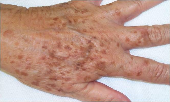 Liver Spots A Sign of Aging Hyperpigmentation and How To Get Rid of Brown Spots