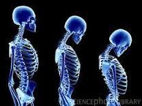 Obat herbal osteoporosis Jelly Gamat Gold G solusi pengobatan herbal untuk keluarga anda.