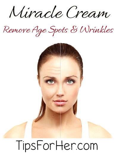 DIY Miracle Cream - Treat & Remove Age Spots & Wrinkles