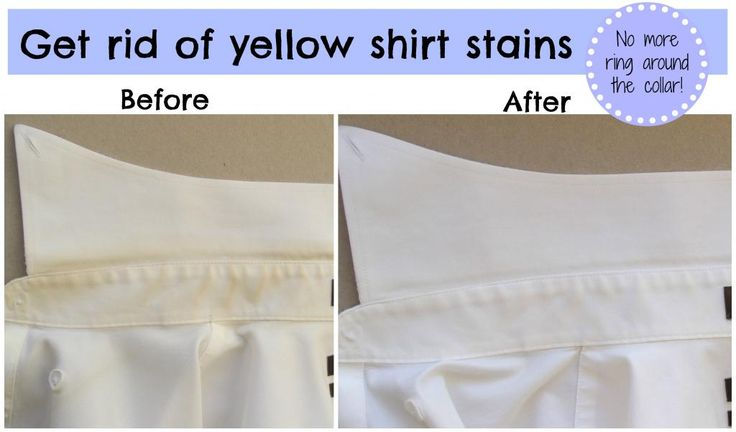 Remove yellow shirt stains + ring around the collar with hydrogren peroxide, Dawn, baking soda and a little scrub!