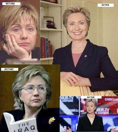 Hillary-Clinton-Plastic-Surgery-cosmetic-surgery