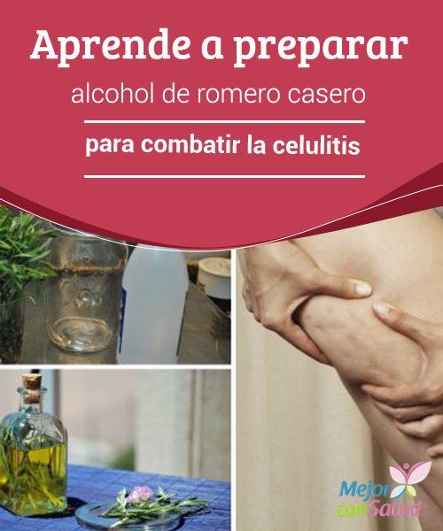 Aprende a preparar alcohol de romero casero para combatir la celulitis  El alcohol de romero es un producto natural cuyas propiedades te ayudan a combatir la antiestética celulitis. Descubre cómo prepararlo en casa.