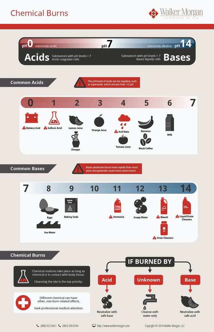 Chemical Burns - Did you know that if you get burned with a base you can neutralize the burn with a safe acid? Learn more in this inforgraphic brought by Walker Morgan. Discover first aid kit items that can help you treat a wide number of injuries here: http://insidefirstaid.com/personal/first-aid-kit #burns #first #aid