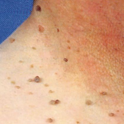 Most Effective Home Remedies For Skin Tags