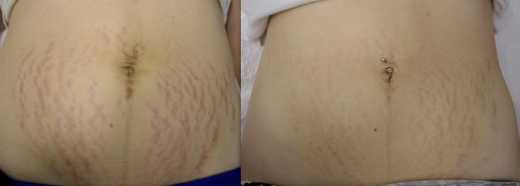 IPL Photorejuvenation treatment is able to fade the appearance of red and purple stretch marks. Perfect for post pregnancy and/or recent weight loss. https://cosmedicalskinsolutions.com.au/treatments/skin-rejuvenation/ipl-photo-rejuvenation/
