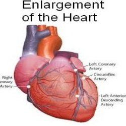 Best Natural Cures For Enlarged Heart - How To Cure Enlarged Heart Naturally | Find Home Remedy & Supplements