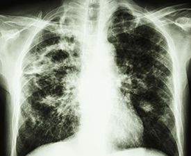 Those who suffer from idiopathic pulmonary fibrosis (IPF) may be breathing a little easier. In October 2014, the Food and Drug Administration approved two new d