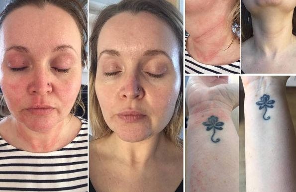 "Natalie, 33, on treatment for 10 days after a period of TSW. ""Dr Aron has given me more relief in 10 days than any other doctor in 33 years! I have suffered on and off with this soul destroying condition all my life. Discovering Aron Regimen has been a light bulb moment for me and I will be forever grateful. This should become the standard treatment that eczema sufferers can come to expect. No more potent steroids, no more immunosuppressants, no more steroid withdrawal hell!"""
