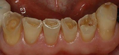 Gibbs M. Prevost, Jr., D.D.S. | Golden Rule Dental | Knoxville, TN