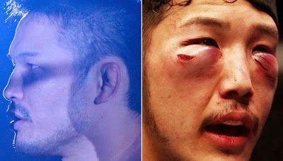 Visages de combattants de lUFC avant après combat   visages de combattants de l ufc avant apres combat 12