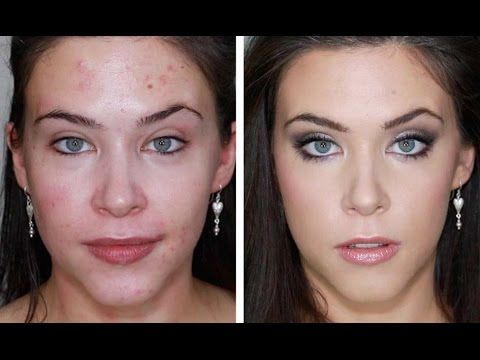 ACNE FOUNDAION ROUTINE FOR FLAWLESS SKIN (FULL COVERAGE TUTORIAL) BLEMISHES, ACNE, SCARING - YouTube