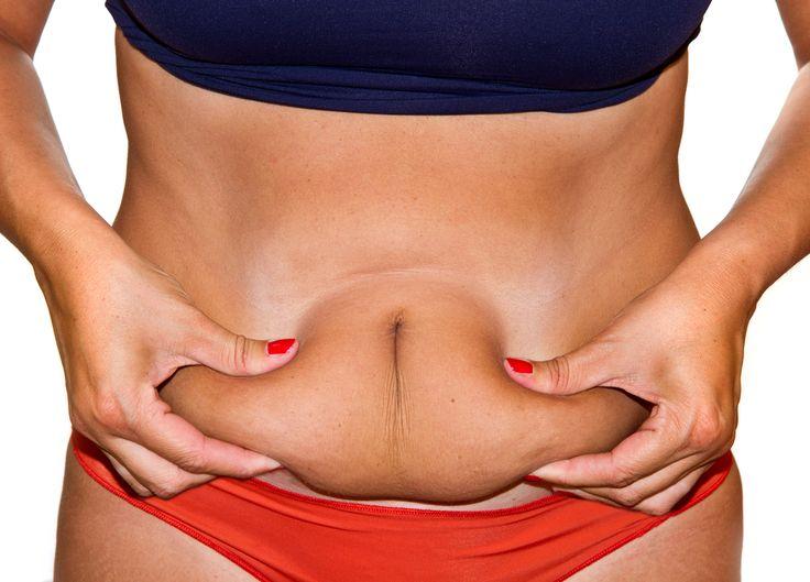 2Esercizi post gravidanza per   Contrastare la diastasi degli addominali