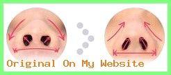 Rhinoplasty Before And After | #breite #eine #einem #Einfache #flache #haben – #rhinoplastyb…