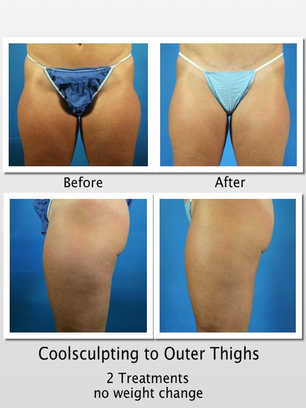 Coolsculpting By Zeltiq 2 Treatments Stacked To Outer