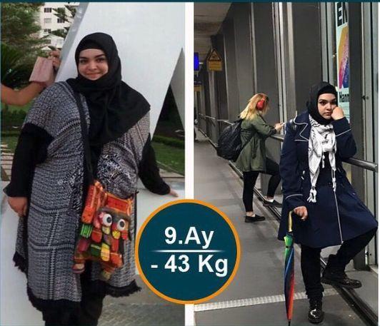 Dr. Tuna Bilecik - Adana Obezite Cerrahisi - Obezite ve Metabolik Cerrahi