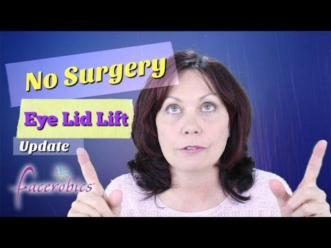 How to Get Rid of Droopy Eye Lids No Surgery Eye Lid Lift Hooded Eye Lid Lift   FACEROBICS® - YouTube