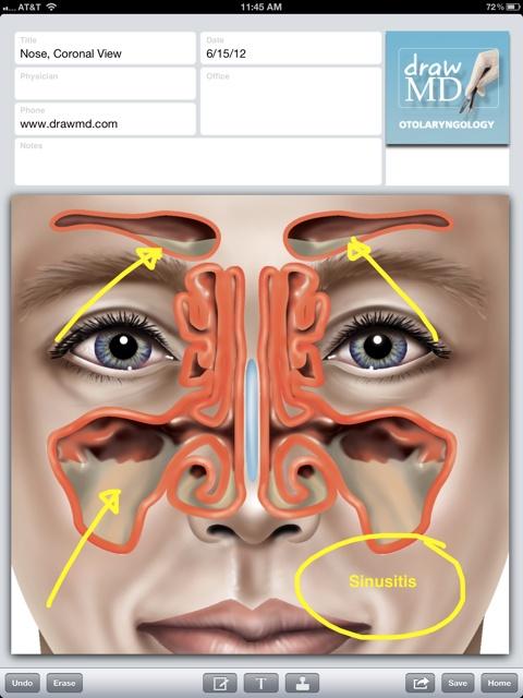 11 Super Mobile Medical Apps via @InformationWeek #mhealth #hit
