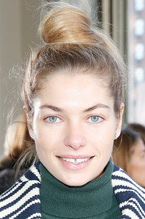 And models like Lindsay Wixson, Jessica Hart, and Lara Stone. | 19 Gorgeous People With Gap Teeth