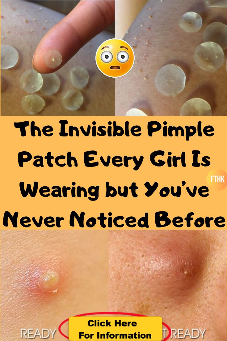 The Invisible Pimple Patch Every Girl Is Wearing but You've Never Noticed Before