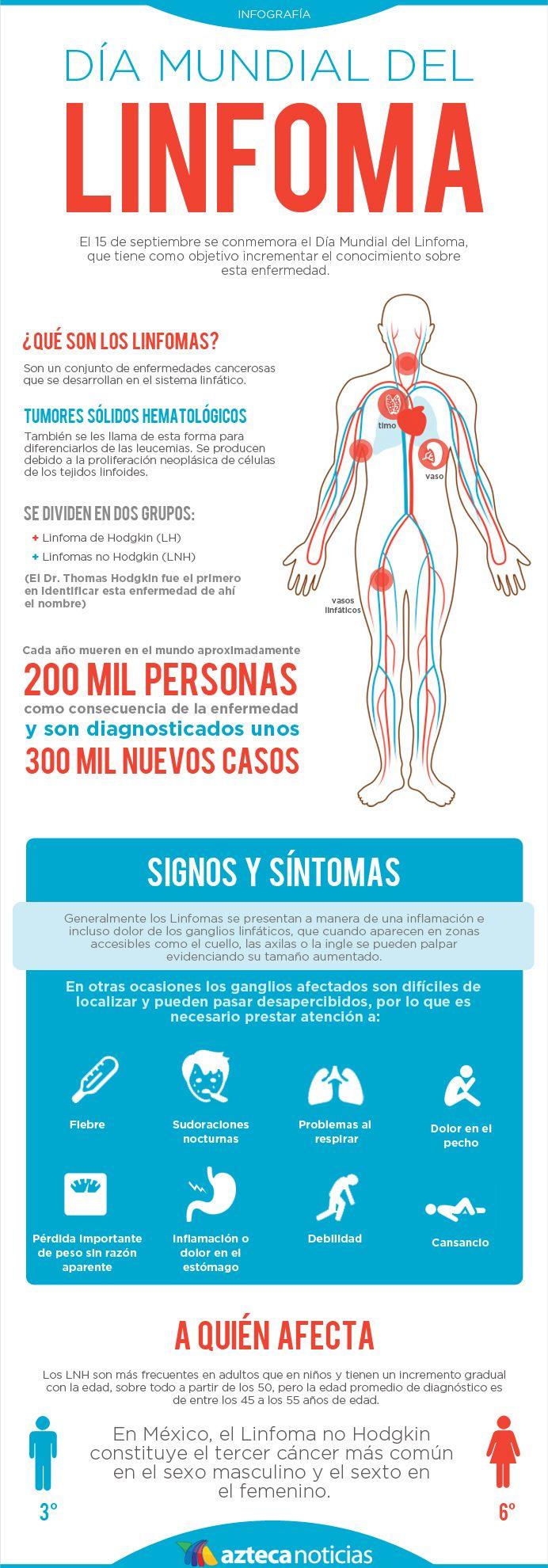 Día Mundial del Linfoma #infografia