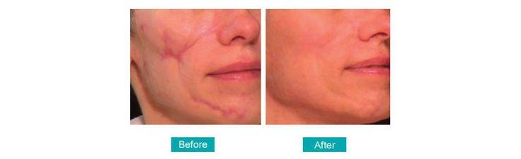 https://magic.piktochart.com/output/2232526-cosmetic-surgeries-in-kolkata cosmetic surgery treatment