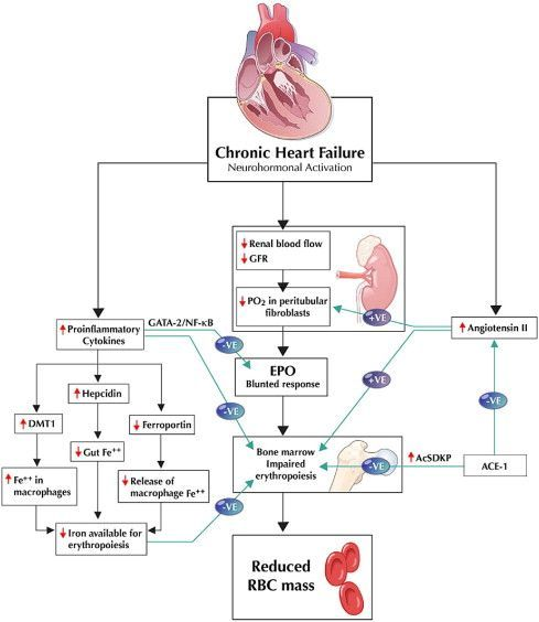 Heart failure, Pulmonary edema and Heart sounds on Pinterest