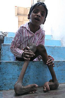 union carbide the bhopal disaster unethical Summary in 1984, the world's worst industrial disaster - a toxic gas leak at a union carbide pesticide plant in bhopal, india - killed thousands of people.