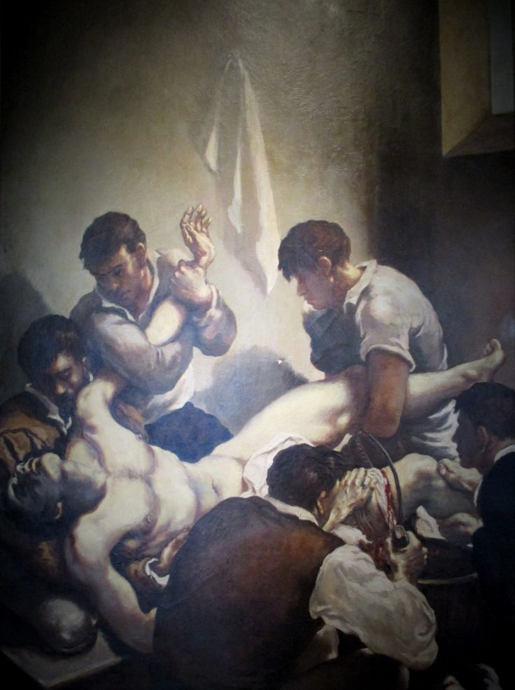 "Amputación (""Amputation""). Gregorio Calvi di Bergolo. 1950. Localización: International Museum Of Surgical Science (Chicago). https://painthealth.wordpress.com/2016/03/23/amputacion/"