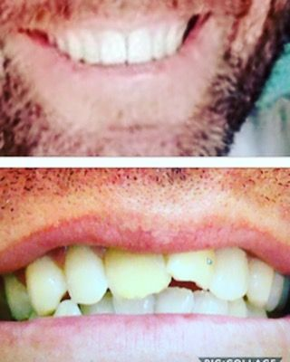 Transformation we did on one of our patients. His smiles looks amazing after Invisalign and two front all porcelain crowns #invisalign #crowns #lajolla #harmonydentalgroup #dentistry #sandiego #orthodontics call us 858-550-8000 for a smile make over #lajollalocals #sandiegoconnection #sdlocals - posted by Dr. Farid  https://www.instagram.com/harmonydentalgroup. See more post on La Jolla at http://LaJollaLocals.com