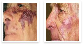 The V-Beam Laser is the most popular laser in our medical practice. It is an advanced pulsed dye laser that acts to decrease evidence of age, decrease fine lines and wrinkles and sun damage.
